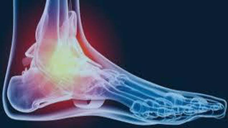 Foot Drop: Major Problem of Abnormal Gait
